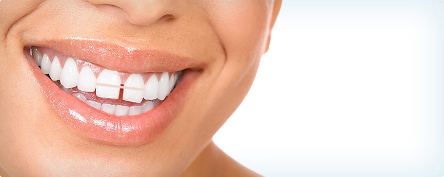 how to get rid of a gummy smile naturally