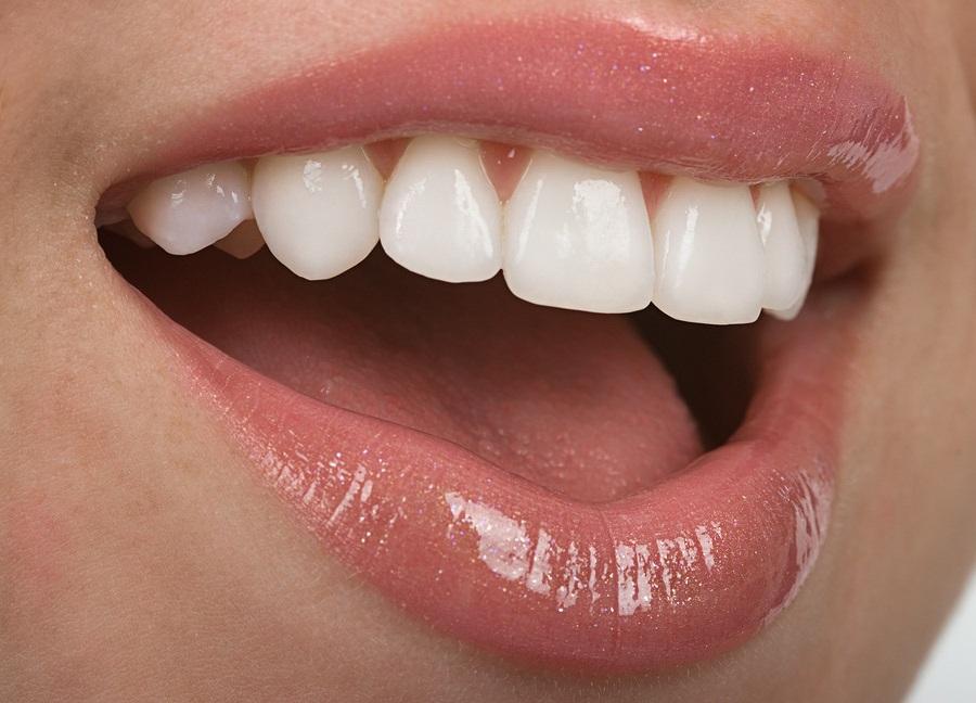 Dentist in maadi providing smile makeovers.