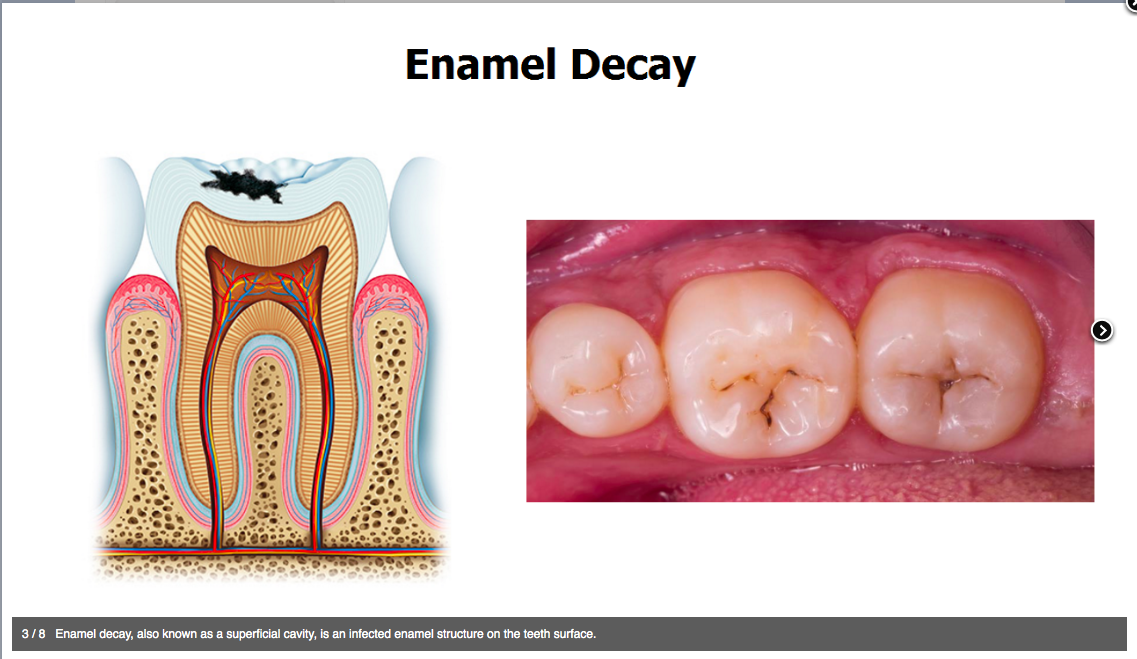 molar tooth decay - 1024×585
